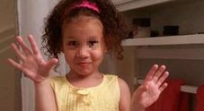 Immagine Da biscotto al dobermann: bimba di 4 anni sbranata