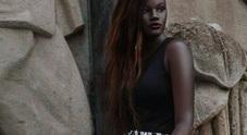 Nel mirino dei bulli per la pelle nera, oggi è una modella di successo