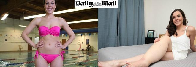 Sogna di fare la modella ma è malata: ha una gamba più grossa dell'altra -Foto