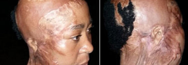 Sorride a un cliente del suo salone di bellezza, 33enne sfregiata con l'acido dal marito -Foto