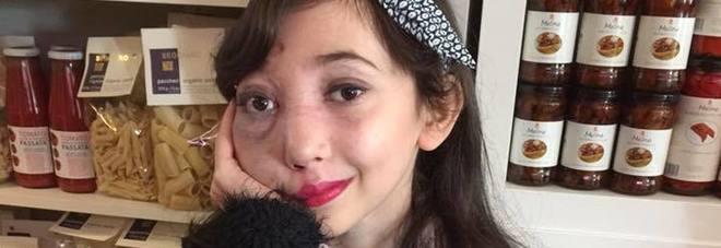 Una malformazione congenita le deturpa il viso, bimba di 11 anni diventa una star del web: ecco come