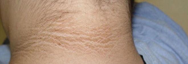 """La 14enne nota una macchia sul suo collo: """"È sporco?"""". Ma dai medici la brutta notizia"""