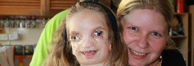 """Una rara sindrome le deforma il viso, la madre: """"Ci ha insegnato cosa sia la vera bellezza"""""""