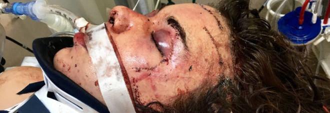 Aggredita e ridotta in coma dal coinquilino: l'aveva trovato su un portale web