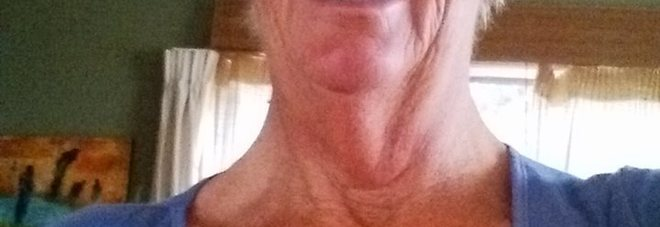 """Scopre di avere un cancro alla pelle: """"Niente medici, sono guarita sola"""", ecco come"""