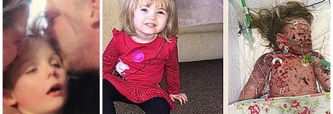 Le foto choc dei bambini morti di meningite per lanciare la campagna pro-vaccino -Guarda