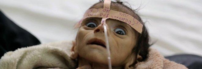 """La storia dietro la foto del bambino di 5 mesi che ha sconvolto il mondo: """"Non ha pianto"""""""