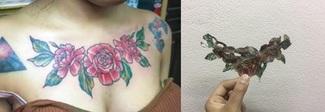 Toglie il tatuaggio con la tecnica Rejuvi ma il risultato è disastroso Foto