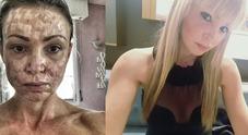 Cristina Guidetti, l'ex-modella con il  viso sfigurato, sarà risarcita