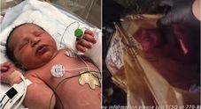 Neonata abbandonata in un sacchetto: polizia posta il video del salvataggio al cardiopalma