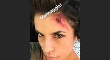 Eli Canalis ferita alla testa, fan spaventati su Instagram: cosa sta succedendo