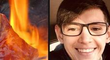 Ritorno di fiamma dalla griglia, 19enne ustionato al volto: è grave