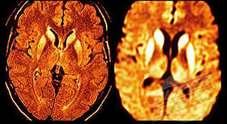 Caso di encefalopatia: paziente gravissimo in ospedale
