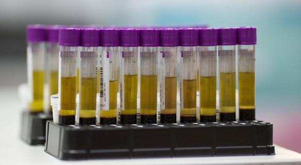 Aids, nuove diagnosi da infezione Hiv: contagio soprattutto con rapporti eterosessuali