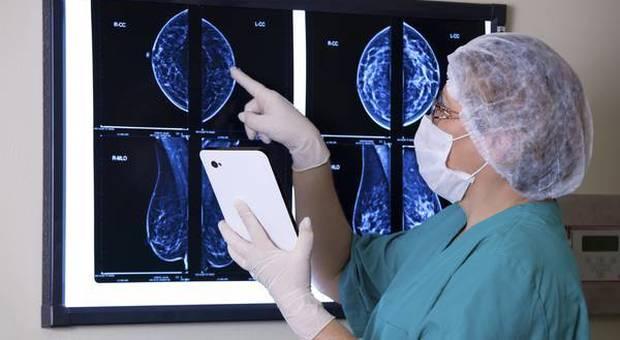 Tumore al seno, nuova cura aumenta del 70% la sopravvivenza per le giovani donne
