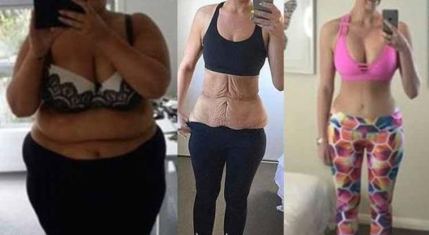 come perdere peso senza pelle in eccesso