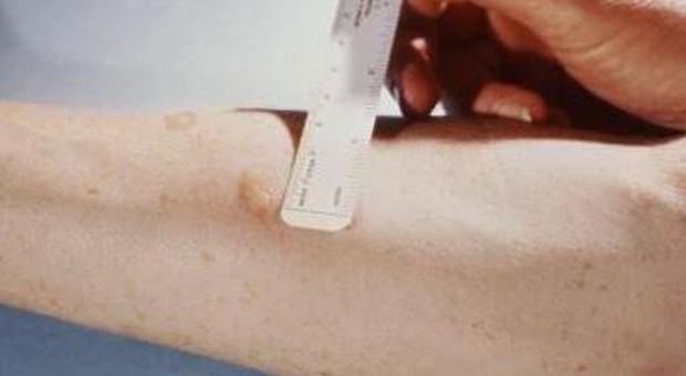 il test per la Tbc