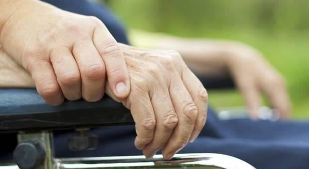 Parkinson e Alzheimer, dieta povera di glucosio e colesterolo può controllarne l'insorgenza