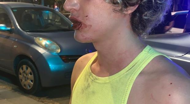 Due ragazzi gay italiani insultati e picchiati a Valencia davanti ad una discoteca. Marrazzo (Gay Center): «Intervenga la Farnesina»