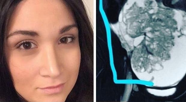 Ha forti mal di pancia, ma i medici minimizzano: ragazza scopre di avere il cancro alle ovaie