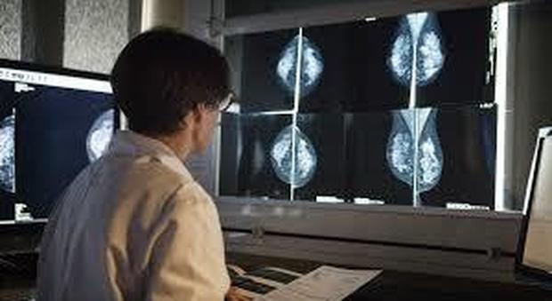 Perdere peso riduce il rischio del tumore al seno