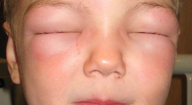 Choc anafilattico, i sintomi e cosa fare in caso di attacco