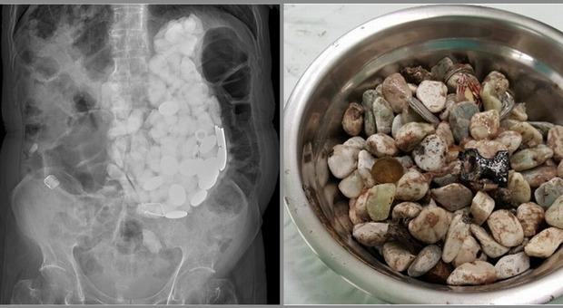 In ospedale per forti dolori, i medici gli trovano nello stomaco 2 kg di tappi, monete e sassi