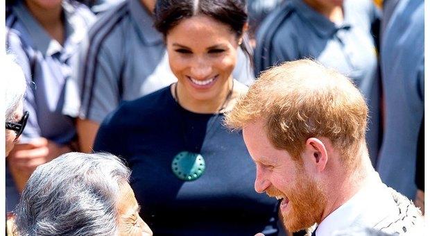 Harry e la calvizie, il principe sceglie un trattamento molto costoso per contrastarla
