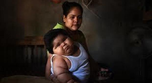 Messico, ha 10 mesi ma pesa come un bambino di 9 anni: il caso anomalo di un bimbo