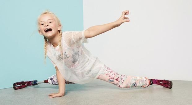 Daisy, baby-modella con le gambe amputate sfilerà alla Fashion Week di New York
