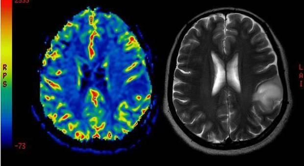 Tumore al cervello a 11 anni, Michael vince la sua battaglia dopo 2 interventi: «Medici i miei angeli»