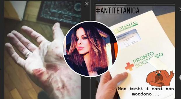 Paura per Alba Parietti, il figlio Francesco Oppini finisce al pronto soccorso: ecco cosa è successo