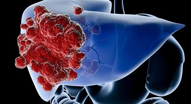 Tumore al fegato di otto chili, giovane mamma operata a Palermo e dimessa dopo 9 giorni: ora sta bene