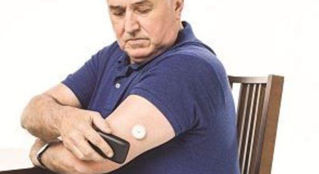 Diabete, il glucosio si misura senza pungersi il dito, basta un piccolo sensore