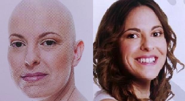 Roberta Zanella, prima e dopo le cure