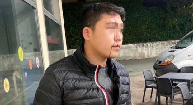 Coronavirus, giovane cinese aggredito: gli hanno spaccato una bottiglia in faccia. «Nessuno l'ha difeso»