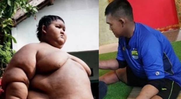 Il 13enne più grasso del mondo perde 100 chili: le foto fanno il giro del web