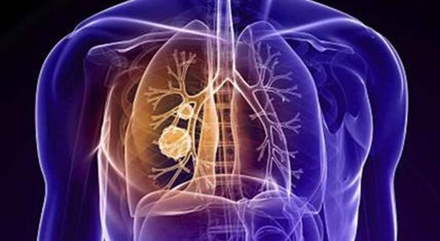 «Tumori sconfitti entro il 2050 con l'immunoterapia». L'annuncio del Nobel della Medicina Honjo