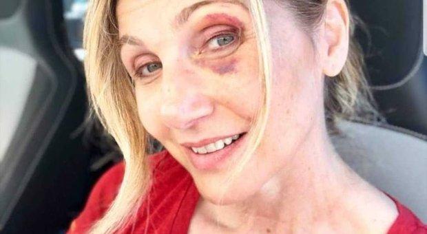 Lorella Cuccarini, foto dell'incidente sui social: «Sono caduta per colpa di una buca»