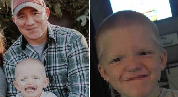 Bimbo di 4 anni muore per un colpo partito per sbaglio: stava giocando alla lotta con il papà