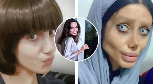 Cinquanta interventi in pochi mesi per somigliare a Angelina Jolie, ecco gli effetti choc