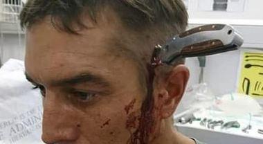 «C'è un dottore libero?»: ciclista si presenta in ospedale con un coltello conficcato in testa