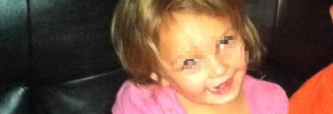 Bimba di 3 anni sbranata da un Pit Bull: il padre aveva comprato il cane da cinque giorni