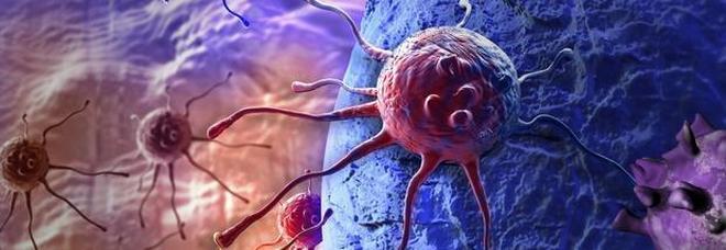 Tumori, italiani scoprono molecola che previene la formazione delle metastasi
