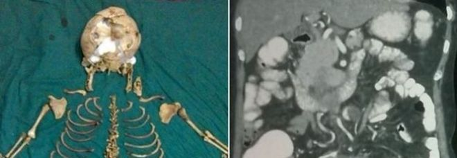 """Vive per 36 anni con lo scheletro del suo bimbo mai nato nella pancia: """"Incinta nel 1978"""""""