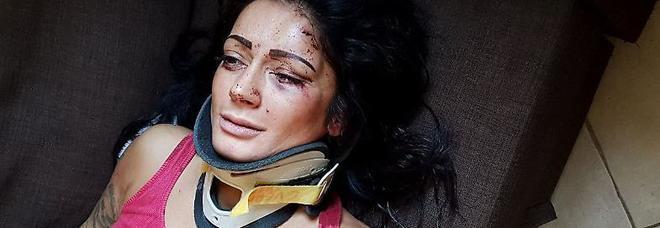 Ballerina romena aggredita in casa: su Fb le foto choc dopo il pestaggio