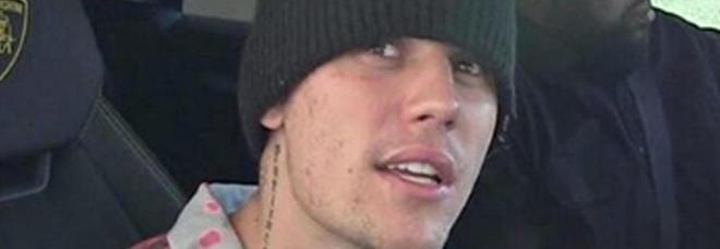 Justin Bieber choc: «Non sono drogato, sono malato». Fan in ansia dopo il post su Instagram