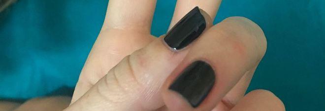 Nadia Toffa, il mistero dello smalto sulle unghie nella foto dall'ospedale
