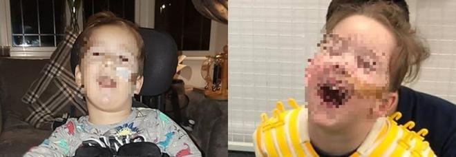 Bimbo affetto da paralisi cerebrale cammina per la prima volta. «È un miracolo»