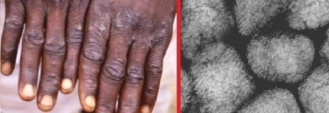 Vaiolo delle scimmie, l'allerta del virologo: «Malattia grave, morte in un paziente su 5»